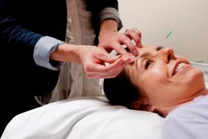 Cosmetic Acupuncture Facial Rejuvenation Acupuncture